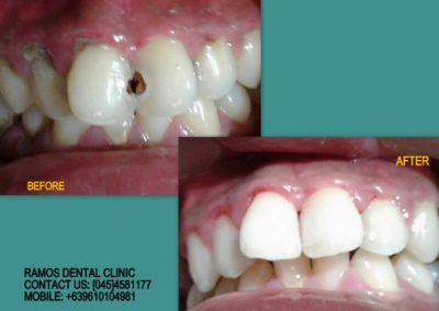 Caries in Front Teeth Filled Up