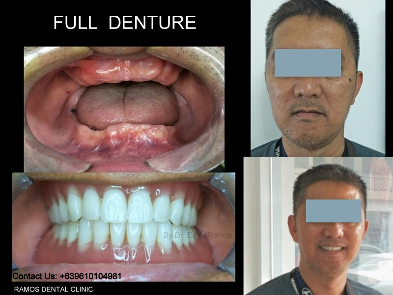 Complete Full Denture for Male Patient 48 y.o