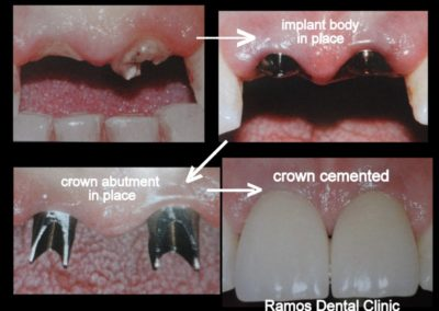 Dental Implants on Central Incisors