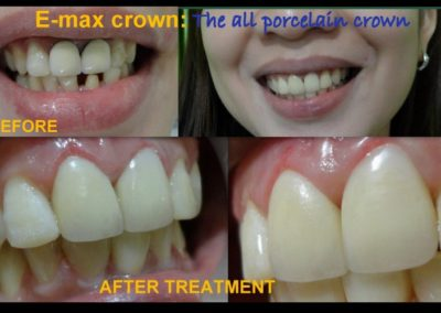E-max Crown with Gum Contouring