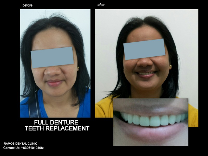 Full Denture Replacement for Worn Out and Severely Receded Bone for Female Patient 45 y.o