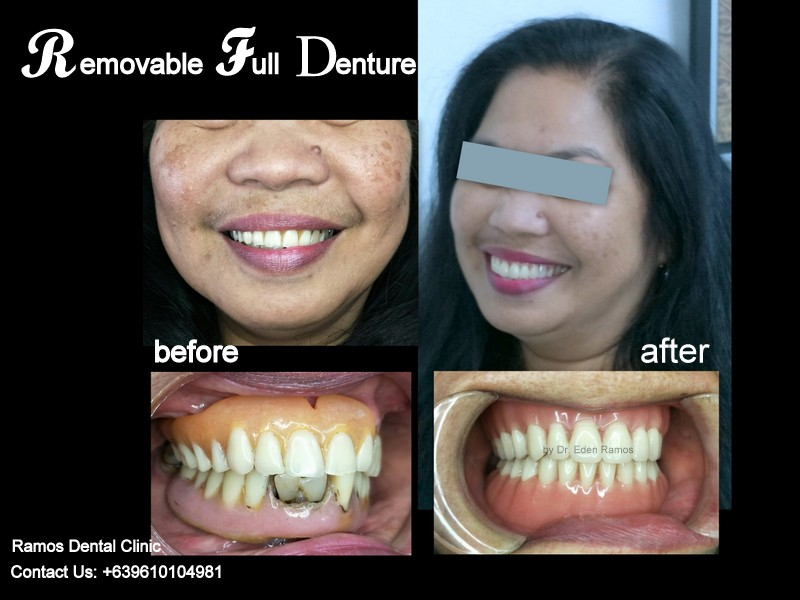 Full Denture Replacement of a 52 y.o Female Patient