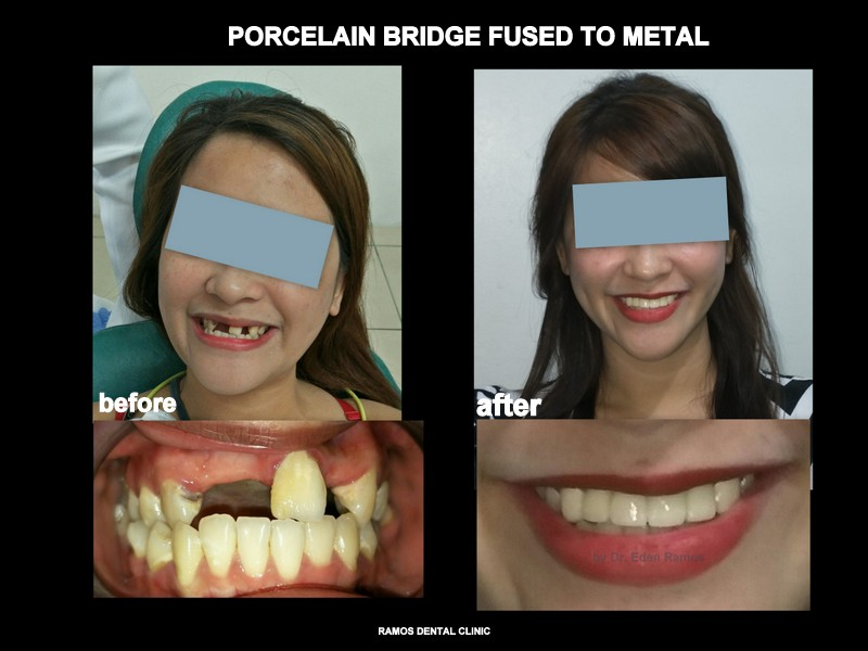 Porcelain Bridge Fused to Metal to Replace Old Denture of 25 y.o Female Patient