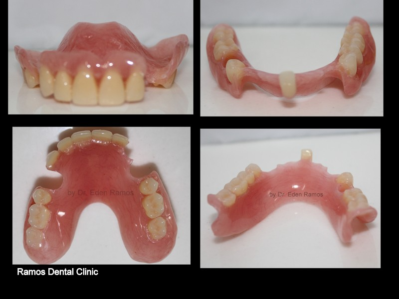 Removable Partial Denture Without Clamp