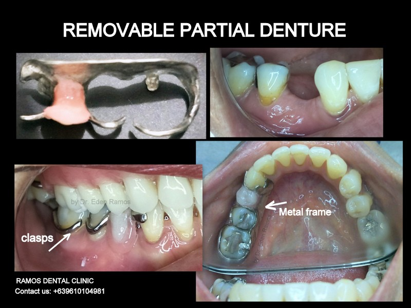 Removable Partial Denture for Missing Left Premolar for Female Patient Age 48