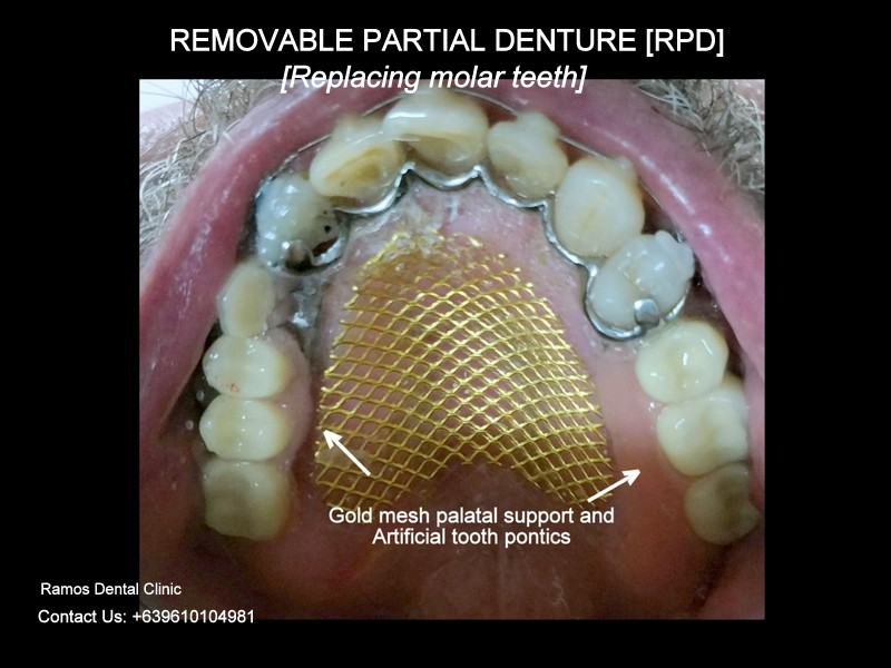 Removable Partial Denture to Replace Missing Premolar Teeth Of 63 Male Patient