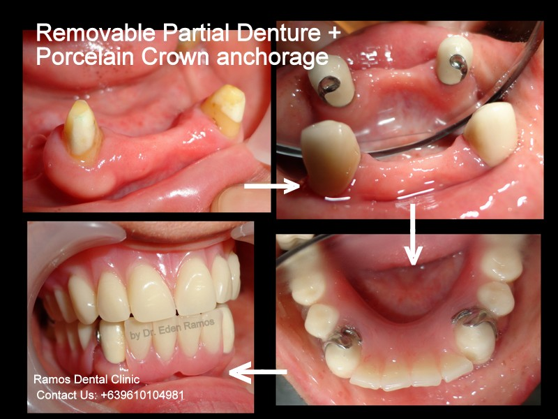 Removable Partial Denture with Jacket crown support
