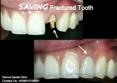 Root Canal Therapy & Zirconia Crown Replacement
