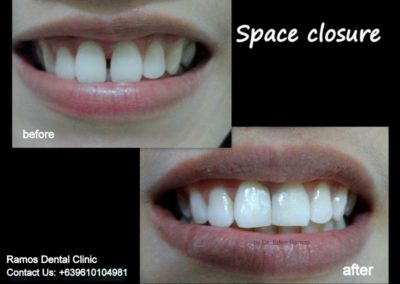 Space Closure of Front Teeth